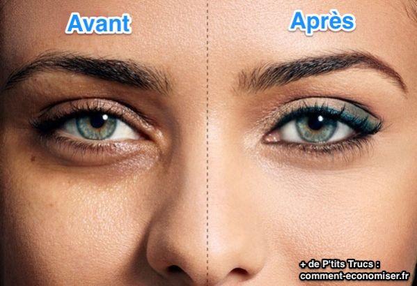cernes-yeux-avant-apres