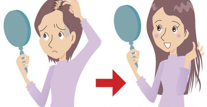 Le coût de la transplantation des cheveu à oufe